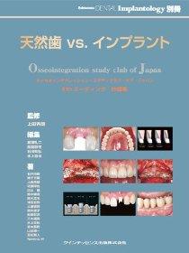 天然歯vs.インプラント